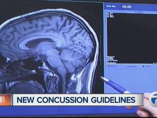 New concussion guidelines