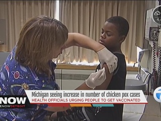 Chicken pox cases rise in Michigan