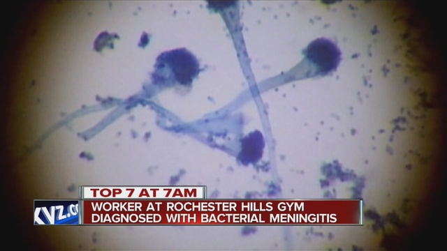 Caution urged after camp worker gets bacterial meningitis