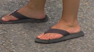 Doctors warn about the dangers of flip-flops