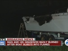 Man, grandson injured after boat catches fire