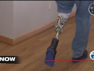 Hartland man receives new prosthetic, outlook