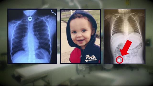 Metro Detroit 3 year old swallows piece of fid spinner WXYZ