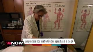 Dr. Nandi: Acupuncture may be effective for pain