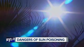 Ask Dr. Nandi: Sun poisoning symptoms