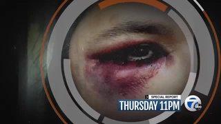 Thursday at 11: Foul ball dangers