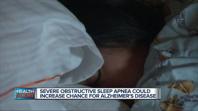 Study says improving sleep apnea diagnosis could delay Alzheimer's disease