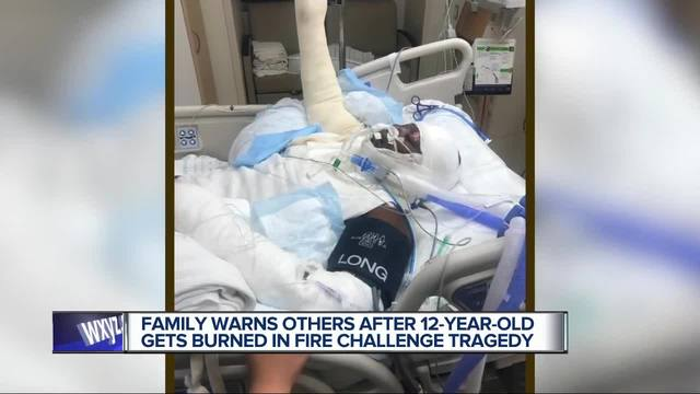 12-year-old girl injured doing Fire Challenge