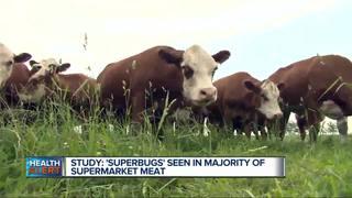 Superbugs seen in majority of supermarket meats